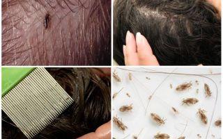 Вши на длинных волосах — народные средства борьбы с ними
