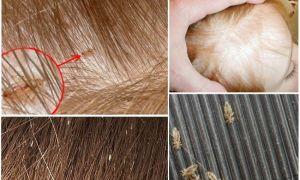 Как уничтожить гнид в волосах?