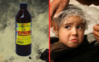 Как лечить педикулез керосином?