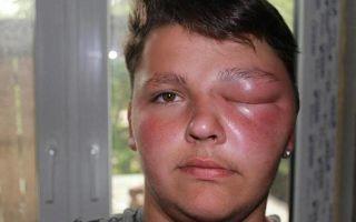 Что делать, если пчела укусила в глаз?